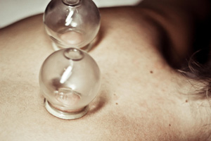 Patient receiving cupping therapy